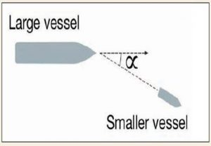 large_vessel