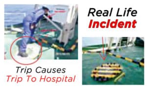 Trip-Causes-Trip-To-Ship's-Hospital